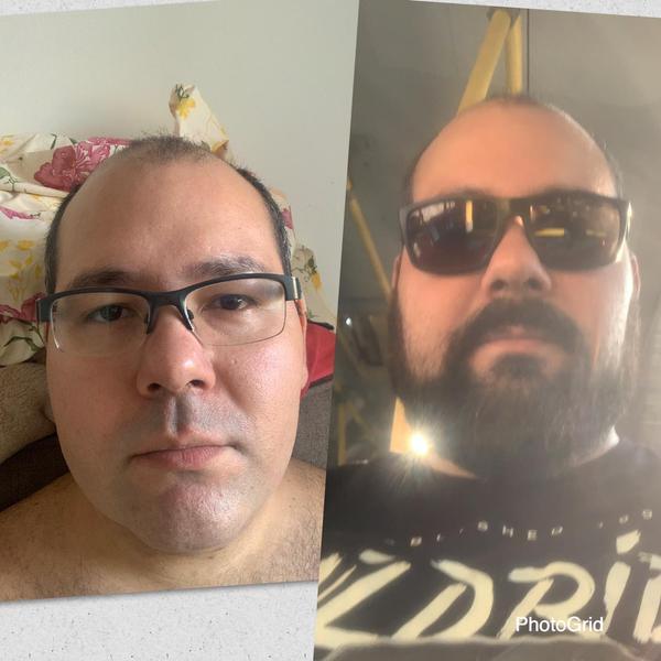 Raspar a barba ajuda na higienização